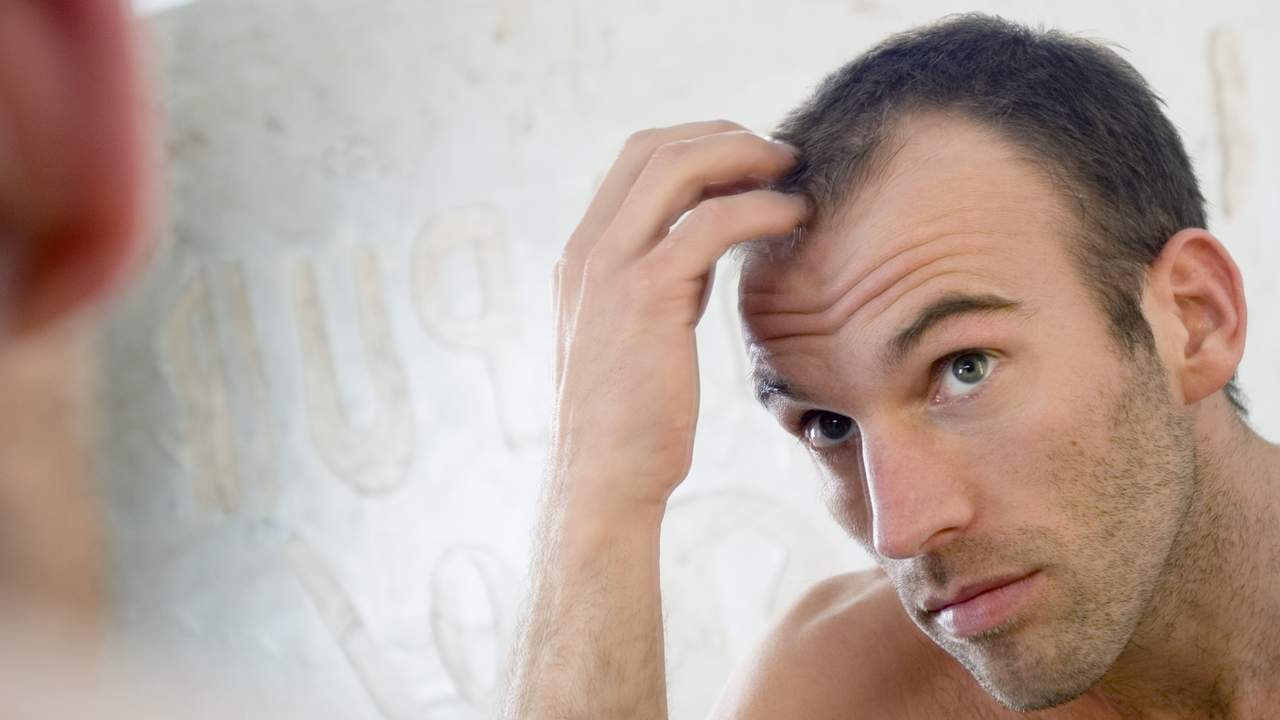 10 Baldness Myths You Should Stop Believing