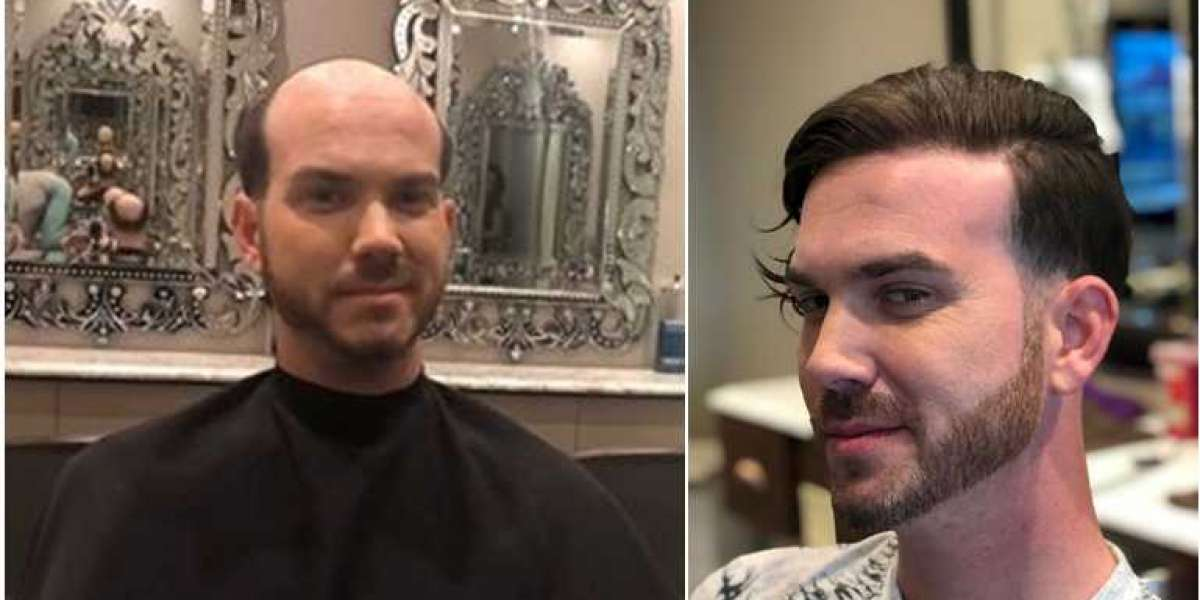Difference between hair transplant and non-surgical hair replacement