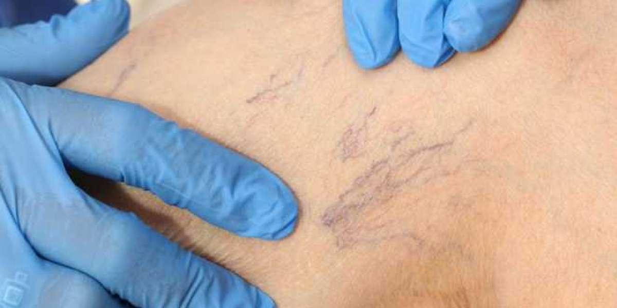 Various Ways Through Which You Can Get Rid Of Spider Veins