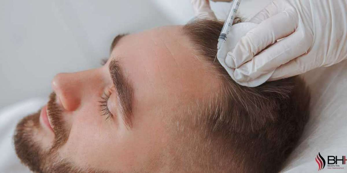 How Much Is Hair Transplant Surgery