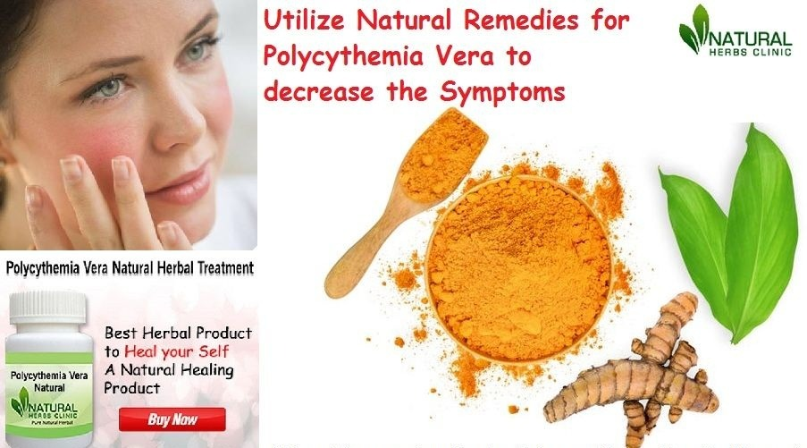 Natural Herbal Remedies — Natural and Herbal Remedies for Polycythemia Vera